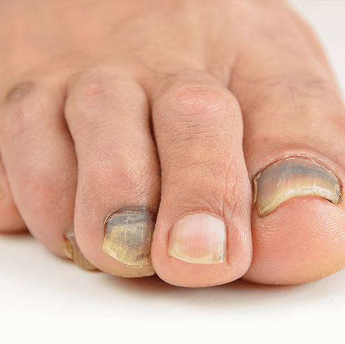 Soccer Toes: The Ugly Truth - Girls Soccer Network